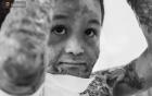 Xót xa những vết bỏng đau đớn trên người bé trai 6 tuổi: Ngày con phải cưa chân là ngày bạn bè vào lớp 1