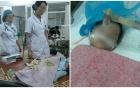 Bé gái 8 tháng tuổi hôn mê nguy kịch sau mũi tiêm của nhân viên y tế