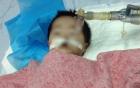 Vụ tiêm nhầm thuốc gây nguy kịch cho bé 8 tháng: Dược sĩ khuyến cáo 11 điểm phòng sai sót