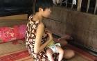 Điều tra vụ án bé gái bại não bị cưỡng hiếp đến có con