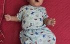 """Xót xa em bé không mở được mắt vì 2 mí dính chặt: """"Nhìn con ê a cười, chân tay quờ quạng mà thương cháy ruột gan"""""""
