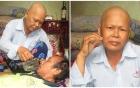 Chuyện cảm động về người vợ ung thư rụng hết tóc, ước mong ngày cuối đời có một bữa no cùng chồng bại liệt
