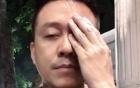 Clip: Tuấn Hưng tiết lộ thị lực giảm nặng, không thể nhìn rõ mọi thứ vì tai nạn trên sân cỏ