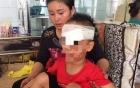 Bé trai 6 tuổi bị chó nhà cắn nát vùng mặt