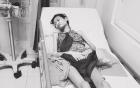 Hà Anh rớt nước mắt khi thấy người mẫu Kim Anh chỉ còn da bọc xương vì ung thư