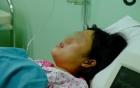 TP.HCM: Sản phụ 26 tuổi tử vong thương tâm sau khi uống rượu gừng để giữ ấm bụng