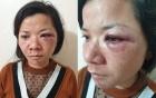 Nam Định: Vợ bị chồng đánh đập dã man, thâm tím mặt mũi ngày mùng 2 Tết