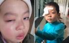 Lạng Sơn: Nghi vấn học sinh tiểu học bị chấn thương mắt nghi do cô giáo dùng thước đánh