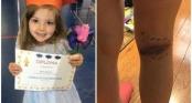 Phát hiện con gái có vết bầm ở chân, bố mẹ tá hỏa khi biết sự thật
