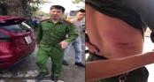 Hà Nội: Công an phường bị xe tải đâm bị thương khi giải quyết trật tự