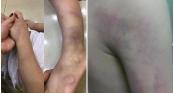 Nghi án cô giáo đánh học sinh lớp 1 bầm tím chân tay