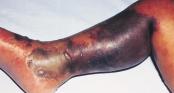 Loại khuẩn gây chết người trong 1 ngày này có thể bùng nổ khi cơn ác mộng kháng kháng sinh ập đến