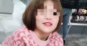Nâng mũi bằng sụn tai, cô gái 19 tuổi tử vong sau phẫu thuật
