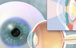 Giảm cận thị sớm và phát triển trí não cho trẻ.