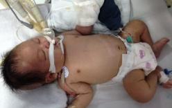 Bé sơ sinh bị hoại tử bàn tay sau tiêm phòng đã tử vong