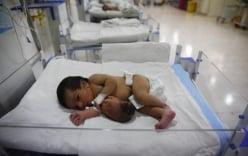 Bé gái sơ sinh có đầu mọc ra từ bụng