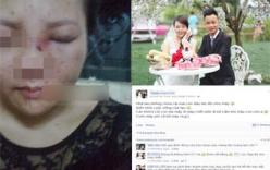 Cộng đồng mạng bức xúc chồng đánh vợ sưng tím mặt đăng chiến tích lên Facebook