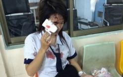 Bỏ phân chó vào thùng rác, nữ sinh bị lao công đánh toác đầu, chảy máu