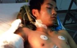 Chàng trai bị chém rơi cánh tay hoảng loạn ở bệnh viện