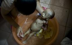 Mắc bệnh lạ, bé gái 1 tuổi nặng 3kg giống y người ngoài hành tinh