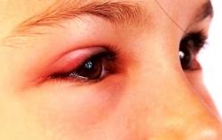 Mẹo chữa bệnh lẹo mắt hiệu quả, nhanh khỏi