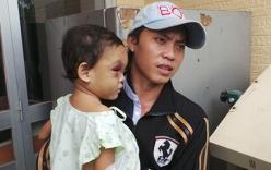 Video: Bé gái 4 tuổi bị bạo hành dã man được gặp lại cha ruột