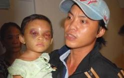 Kết quả giám định ADN xác định cha đẻ bé gái 4 tuổi bị hành hạ