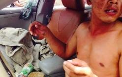 Clip xe điên gây tai nạn bỏ trốn bị người dân đuổi theo đập nát
