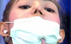 Cặp đôi Thái Lan thành quái nhân vì phẫu thuật thẩm mỹ hỏng