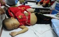 Xót xa bé trai mắc bệnh huyết tán nguy kịch bị cha mẹ ruồng bỏ