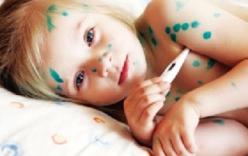 Triệu chứng của bệnh thủy đậu và cách điều trị
