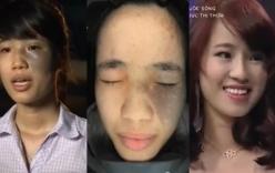 Cô gái Thái Bình biến thành mỹ nhân sau phẫu thuật thẩm mỹ