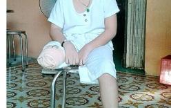 Bé trai bị cắt cụt chân do bác sĩ không tiên lượng được