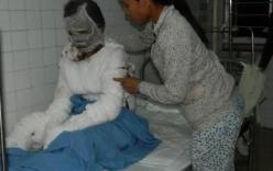Người vợ tự thiêu trong vụ chồng bạo hành ở Quảng Ngãi đã tử vong