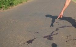 Hãi hùng phát hiện thi thể mất một tay trái