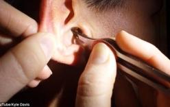 Video: Lấy cục ráy bằng cây nến nhỏ ra khỏi tai