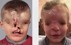 Video: Bé trai không mắt, không mũi trải qua ca phẫu thuật tái tạo khuôn mặt