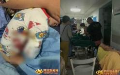 Bé trai 2 tuổi bị hổ ở vườn thú cắn đứt lìa cánh tay