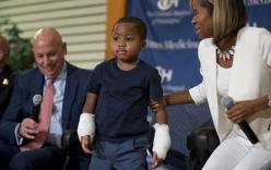 Phẫu thuật ghép đôi tay thành công cho cậu bé 8 tuổi