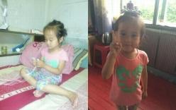 Thương tâm, em bé 4 tuổi mắc khối u buồng trứng ác tính