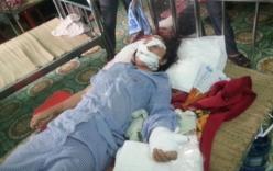 Rúng động Bắc Giang: Tin nhắn hãi hùng của kẻ cắt gân tay vợ