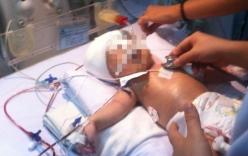 Bộ trưởng Bộ Y tế gửi thư khen ngợi y bác sĩ cứu bé sơ sinh bị đâm vào đầu