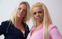 """Hai mẹ con chi tiền tỷ phẫu thuật giống người mẫu """"siêu vòng 1"""""""
