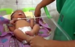 Kỳ lạ bé sơ sinh có lỗ mũi như 2 cái ống gắn trên mặt