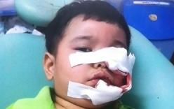 Bé trai 3 tuổi bị chó Phú Quốc cắn phải khâu 200 mũi