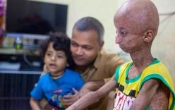 Bé trai 14 tuổi già nua như ông cụ vì mắc bệnh lạ