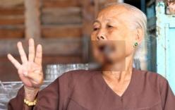 Kỳ lạ cụ bà 87 tuổi ở Miền Tây mọc sừng ở miệng