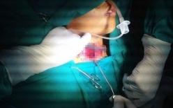 Bé trai bị tôn cứa đứt khí quản đã được cứu sống
