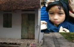 Giải cứu bé gái nghi bị bạo hành trong chùa Thiên Tâm