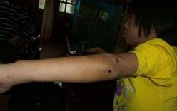 Diễn biến mới vụ bé gái 10 tuổi bị nhốt trong chùa, chằng chịt vết thương
